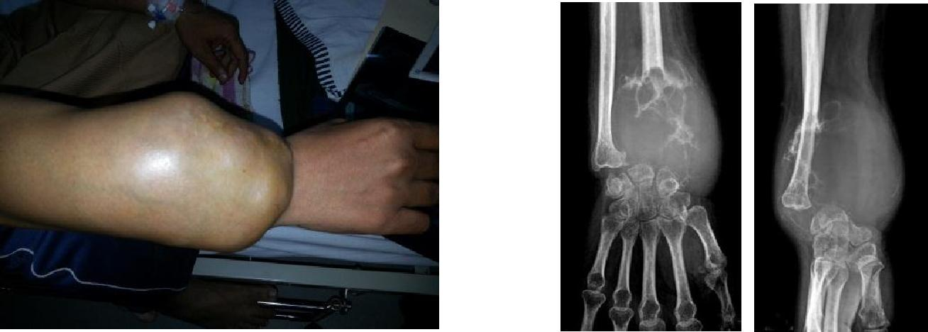 Centralization of Ulna in Treatment of Giant Cell Tumor of Distal Radius - A Case Report